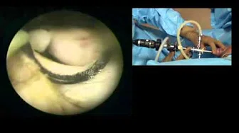 Bipolar TURP- How to resect right lobe of the prostatic adenoma