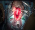 Anastamotic Urethroplasty for PFUDD  Urethroplasty End to end anastamosis & closure